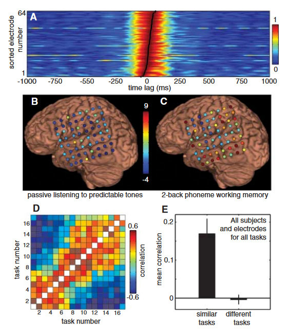 High Gamma Power Is Phase-Locked to Theta Oscillations in Human Neocortex