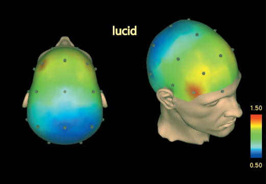 Lucid Dreaming: a State of Consciousness with Features of both Waking and Non-lucid Dreaming