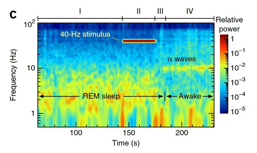 Induction of self awareness in dreams through frontal low current stimulation of gamma activity
